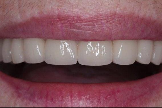 Состояние зубов после установки мостовидного протеза
