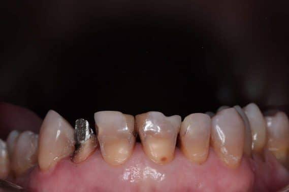 Состояние зубов до протезирования