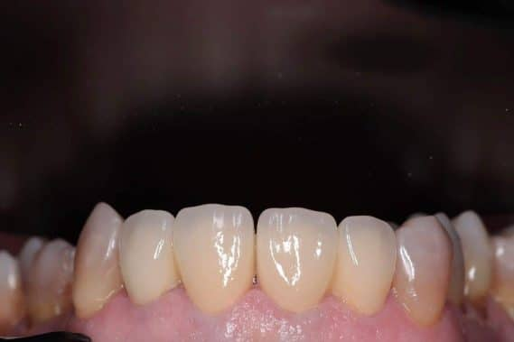 Состояние зубов после установки коронок