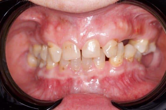 Состояние зубов до установки протеза