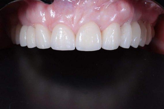 Состояние зубов после установки зубного протеза