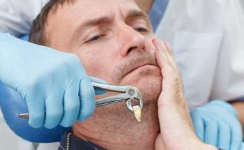 Рекомендации после удаления зуба