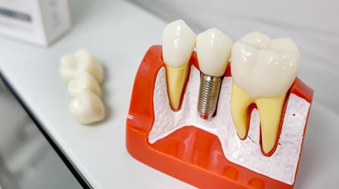 Пластмассовые коронки на зубы