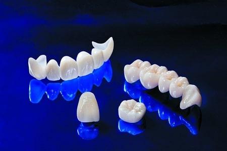 Установка несъемных зубных протезов