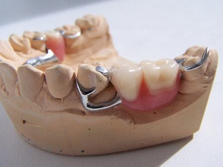Частичный съемный зубной протез бюгельный
